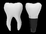 Teeth PNG Free Download 8