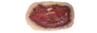 Wound PNG Free Download 7